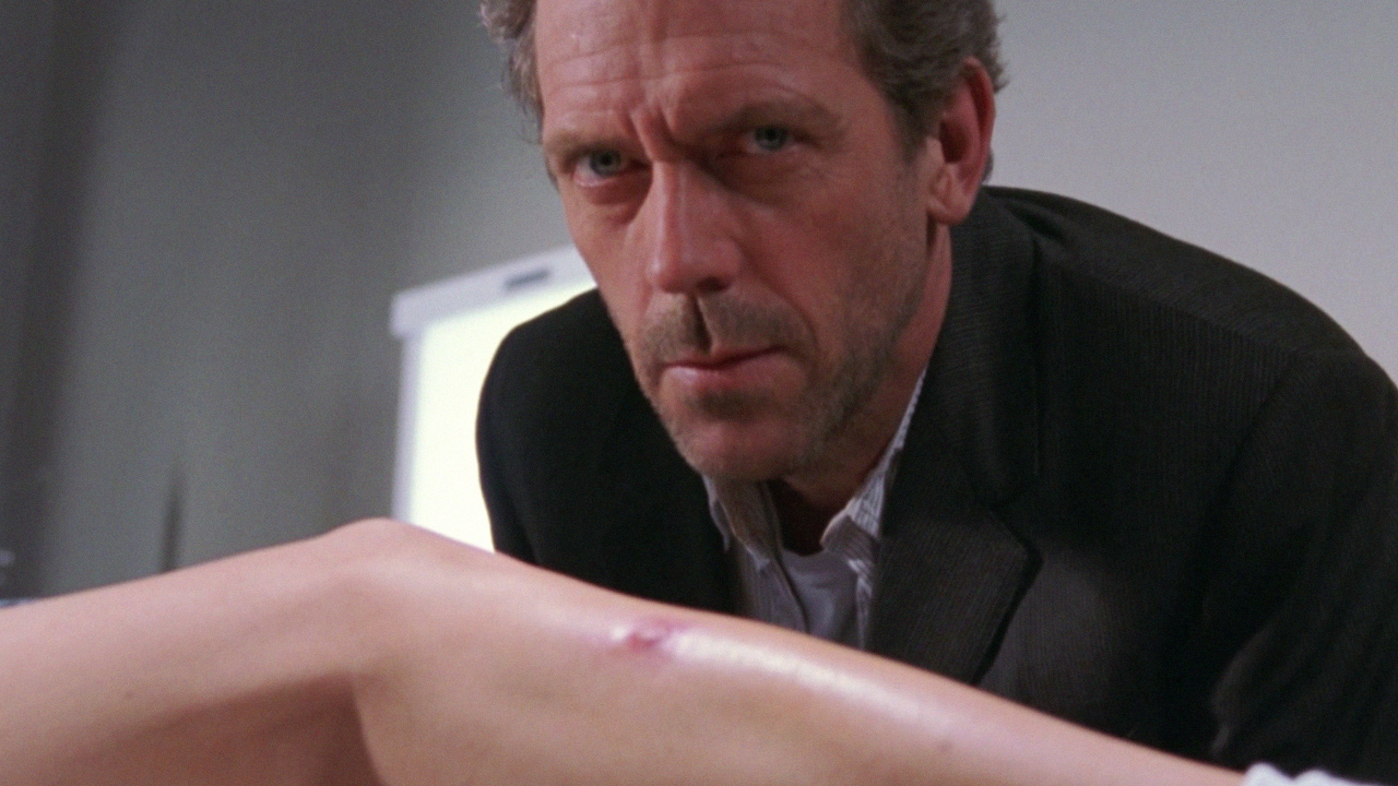 Hugh Laurie as Dr. House and Carmen Electra's Leg.